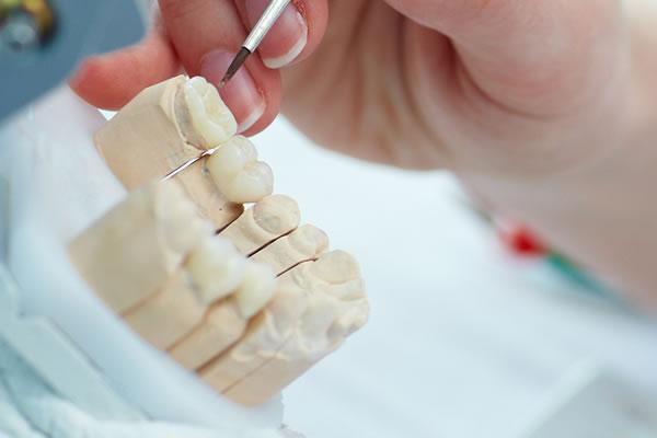 印象はセラミックインレー(審美歯科治療)の設計図です