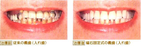 マグネット式の義歯は見た目がきれい
