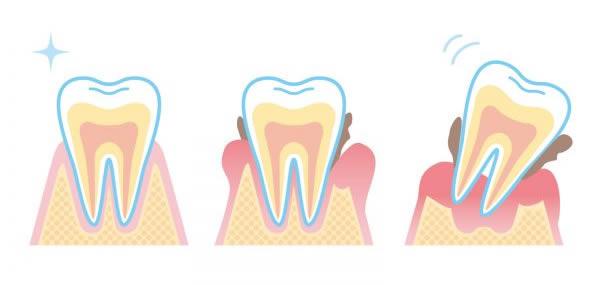 歯周病とは