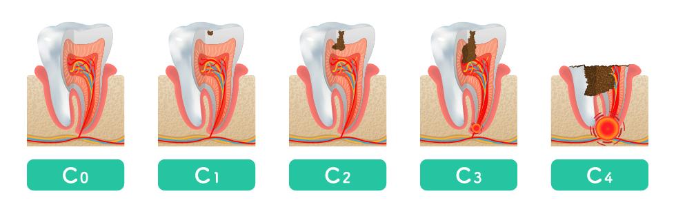 虫歯(う蝕)の進行度合いによる分類と各症状ならび治療法