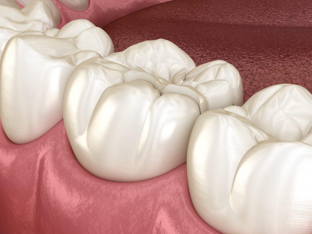 美しい歯をデザインするということ