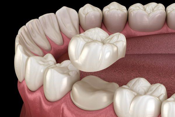 前歯を治す前に奥歯の治療が必要な事もあります。