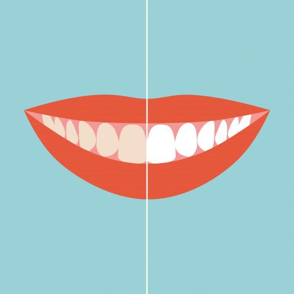 歯の色が濃くなった?