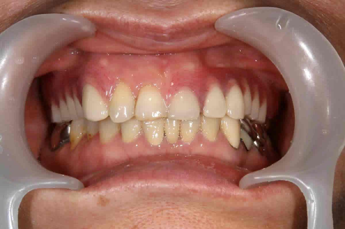 義歯 クラスプレスデンチャー