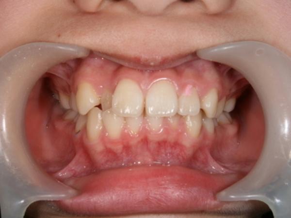 矯正歯科 - 症例1 -
