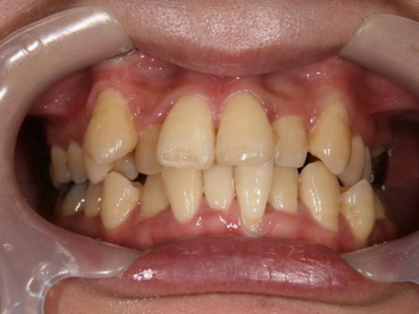 矯正歯科 - 症例2 -