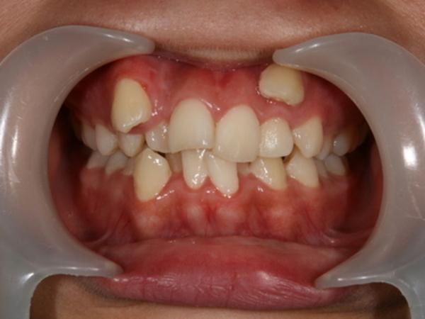 矯正歯科 - 症例3 -
