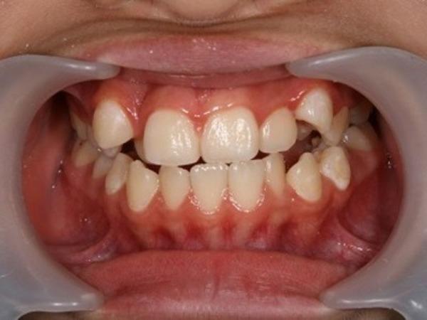 矯正歯科 - 症例4 -