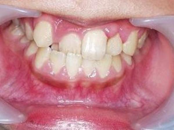 矯正歯科 - 症例5 -