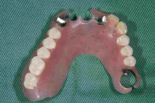 義歯(クラスプレスデンチャー)